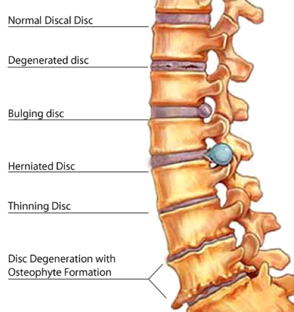 Disc Herniation